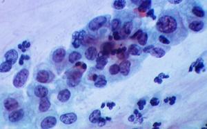 בדיקת פאפ לא תקינה, עם חשד לשינויים טרום ממאירים בתאים, בעינית המיקרוסקופ