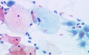 בדיקת פאפ תקינה, מבט מעינית המיקרוסקופ